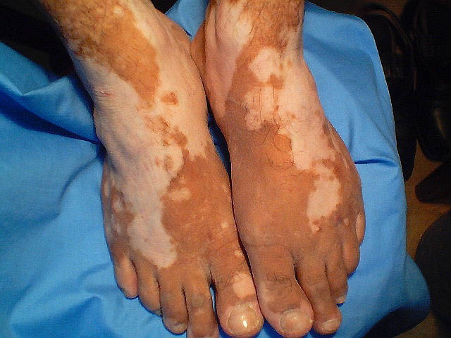 vitiligo on ankles