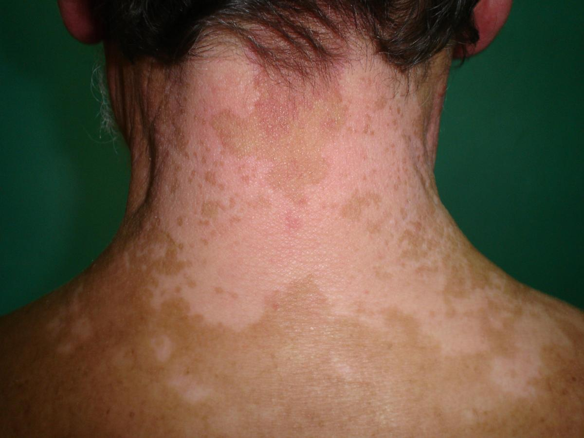 Vitiligo on neck