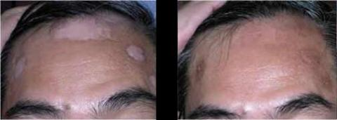 EXCIMER LASER FOR VITILIGO